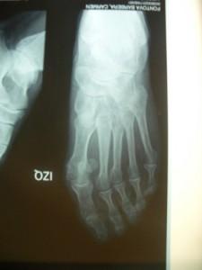 Radiografia pre-operatòria